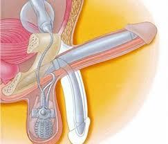 prótesis pene